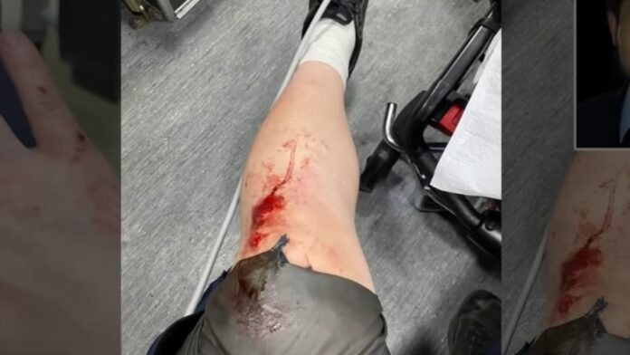 Reporter Andy Ngo is Brutally Attacked by Antifa in Portland...